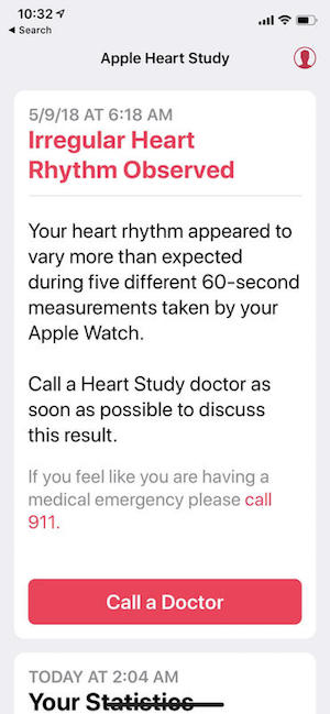 ZDNet Apple Watch Saved Life